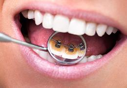 見えない裏側からの矯正歯科