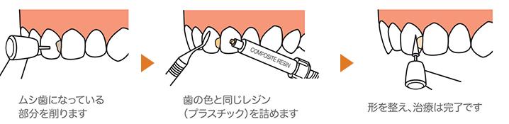 前歯のむし歯(C1,C2)や奥歯の小さいむし歯には詰め物(レジン充填)を行います