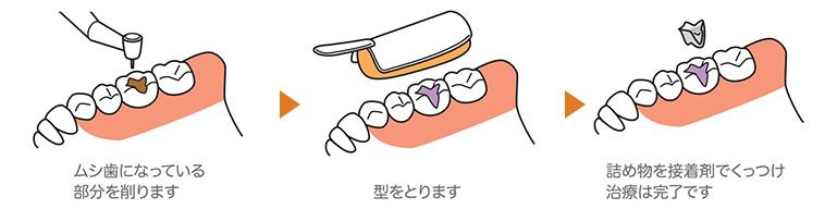 奥歯の大きなむし歯には詰め物(インレー)を作ります