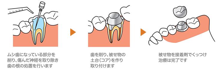 神経まで達した前歯や奥歯のむし歯(C3)には被せ物(クラウン)を作ります