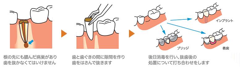 根だけを残して進行したむし歯(残根)には抜歯を行います