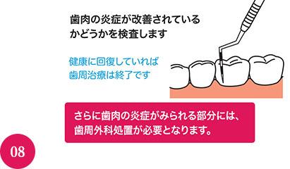 まだ歯肉に炎症がみられる部分には、次の歯周治療に進みます