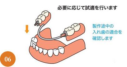 義歯治療の流れ